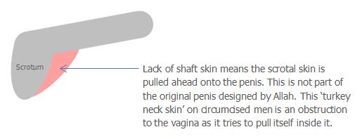 Kruti krk (penoskrotální Popruh) - Šourek tažen hřídele kůží